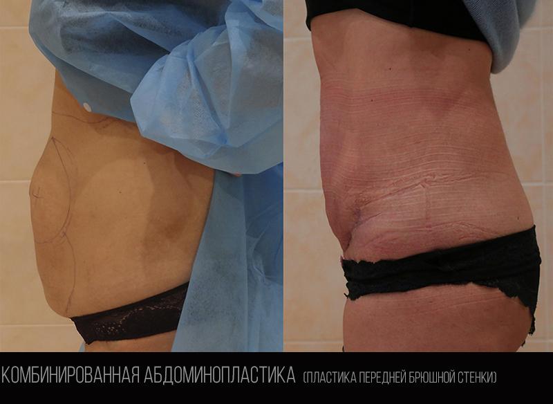 Abdominoplasty 1.1