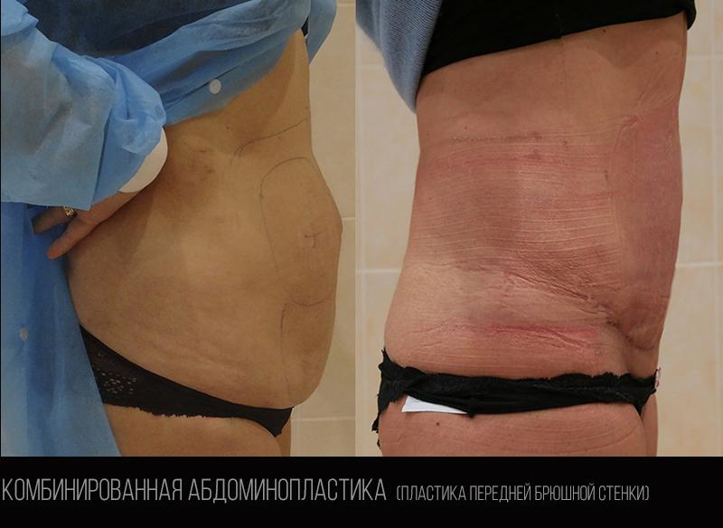 Abdominoplasty 1.2