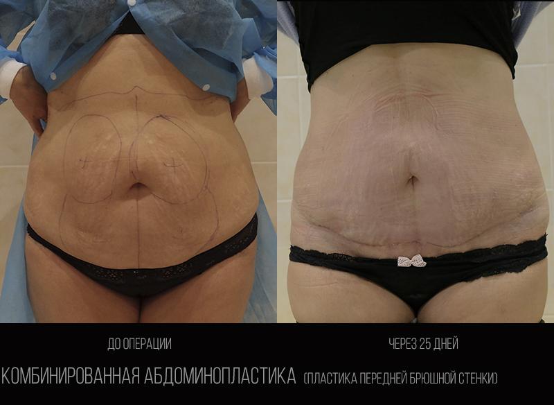 Abdominoplasty 1