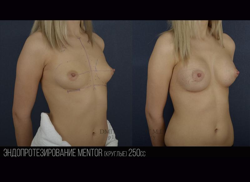 Breast 1.1