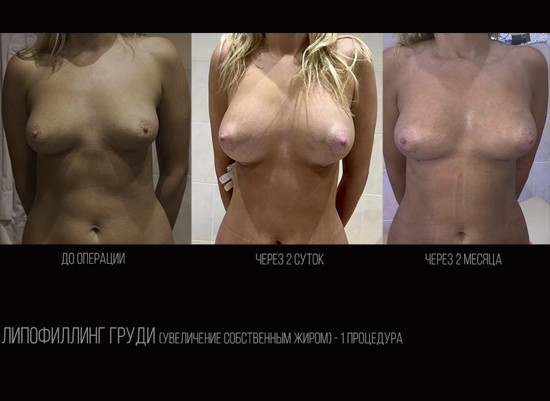 Breast lipofilling 1.1