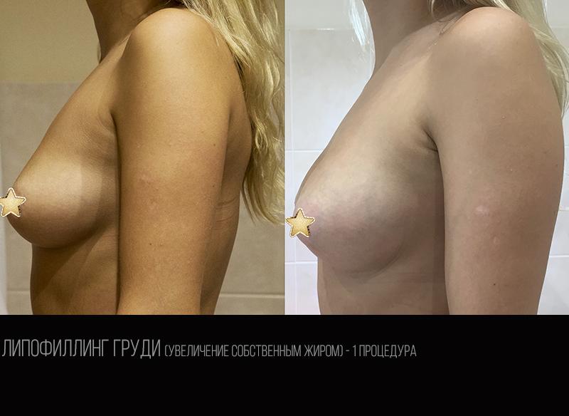 Breast lipofilling 1.3