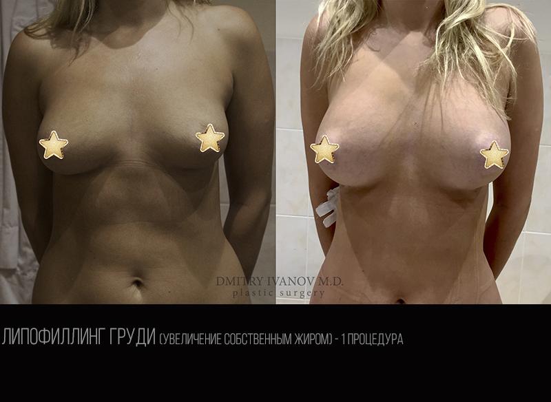 Breast lipofilling 1