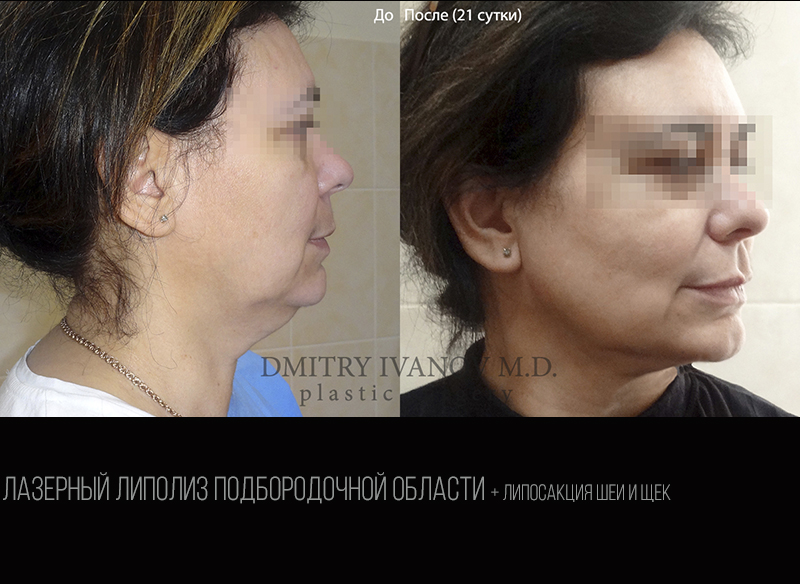 Submental laser liposuction 1.1