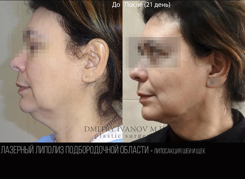 Submental laser liposuction 1