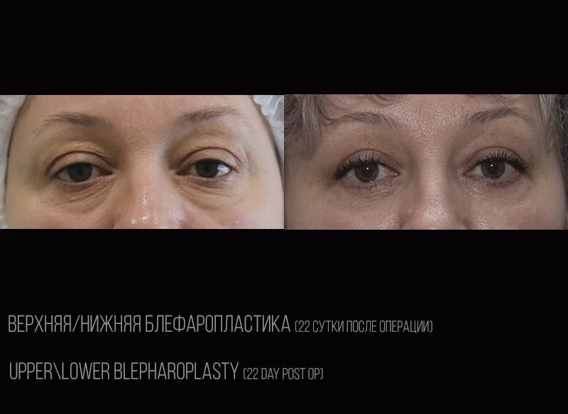 Blepharoplasty compaired