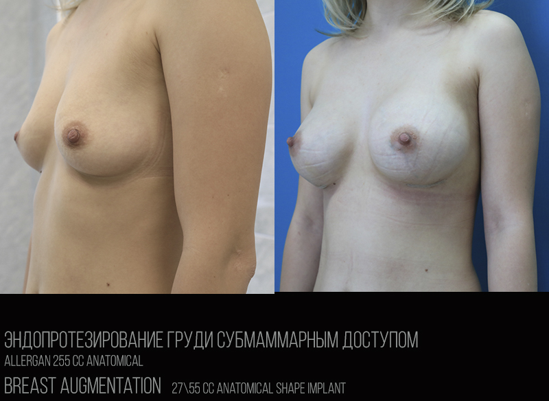 Breast Augmentation_2