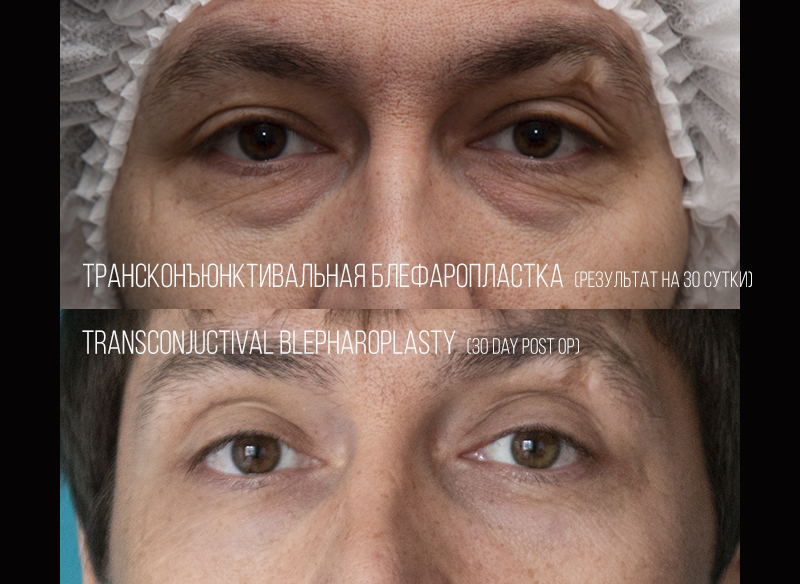 Transconjuctival blepharoplasty