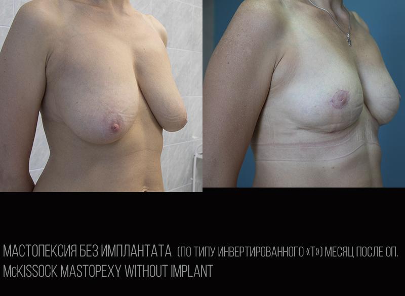 Мастопексия инвертированное Т