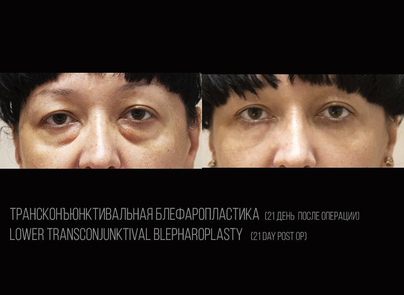 Трансконъюнктивальная блефаропластика 3