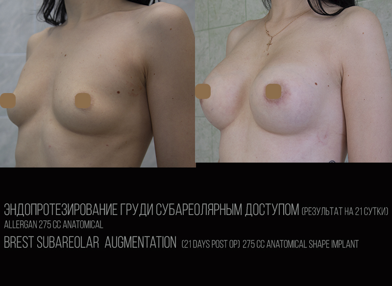 Эндопротезирование субареолярно1
