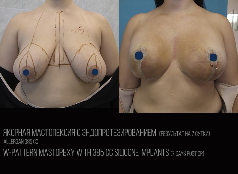 W-mastopexy 1