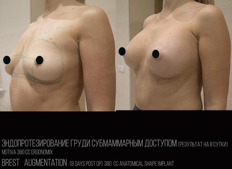 Увел груди (дек)-2
