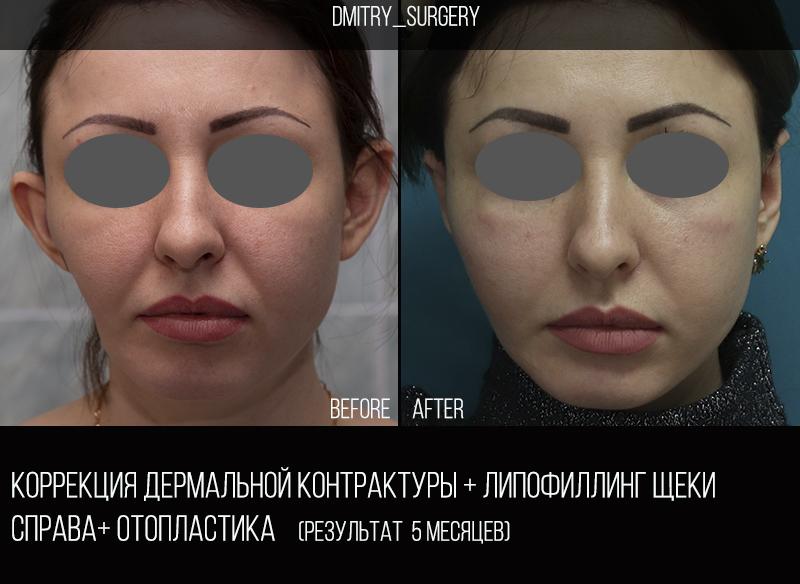 контрактура лица 2