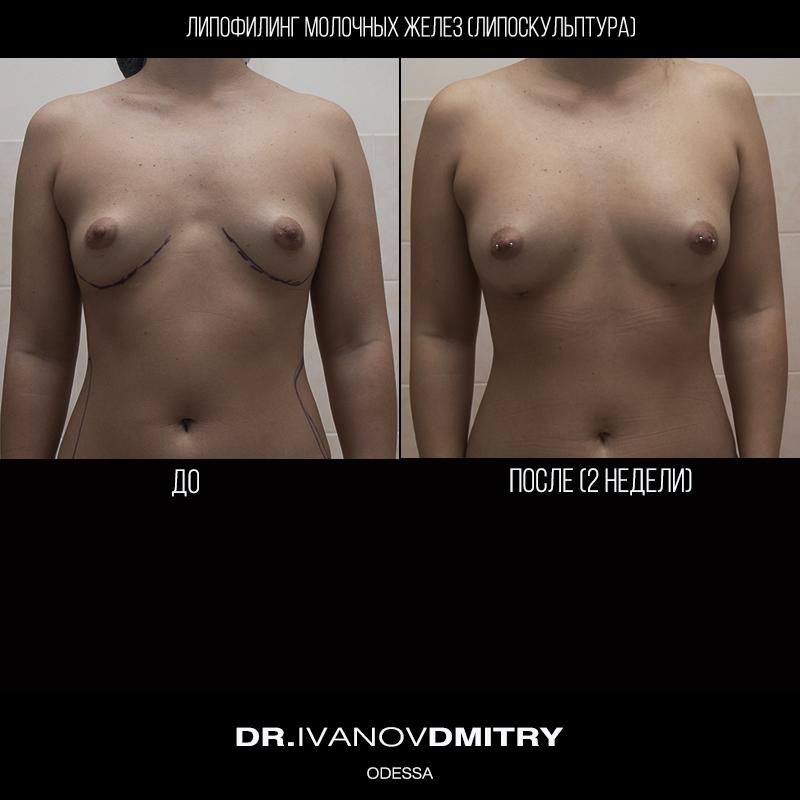Breast_lipofil_800 х 800