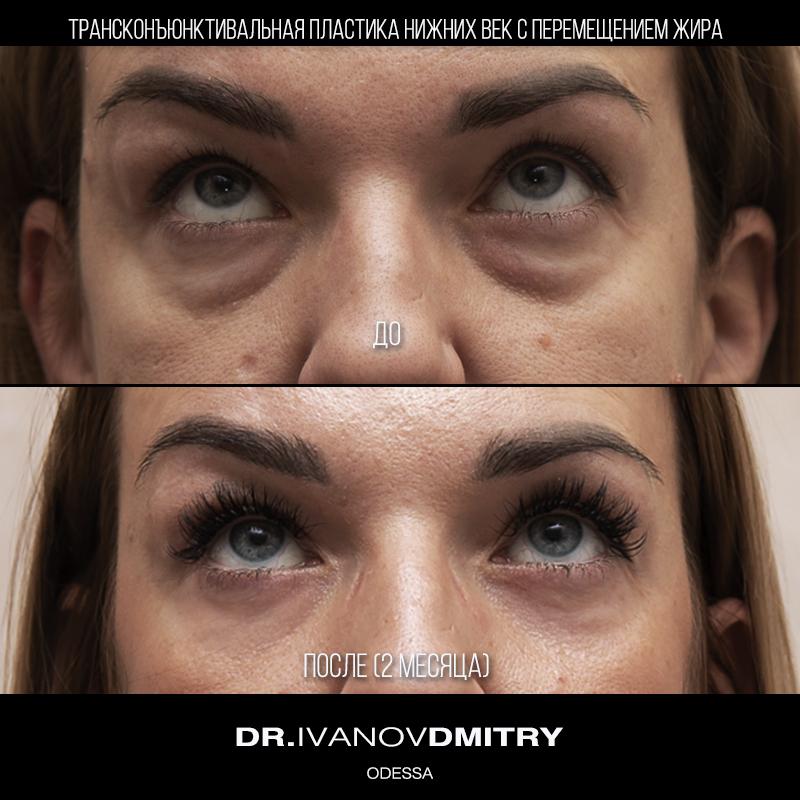 Trans eyelid front up 800 х 800